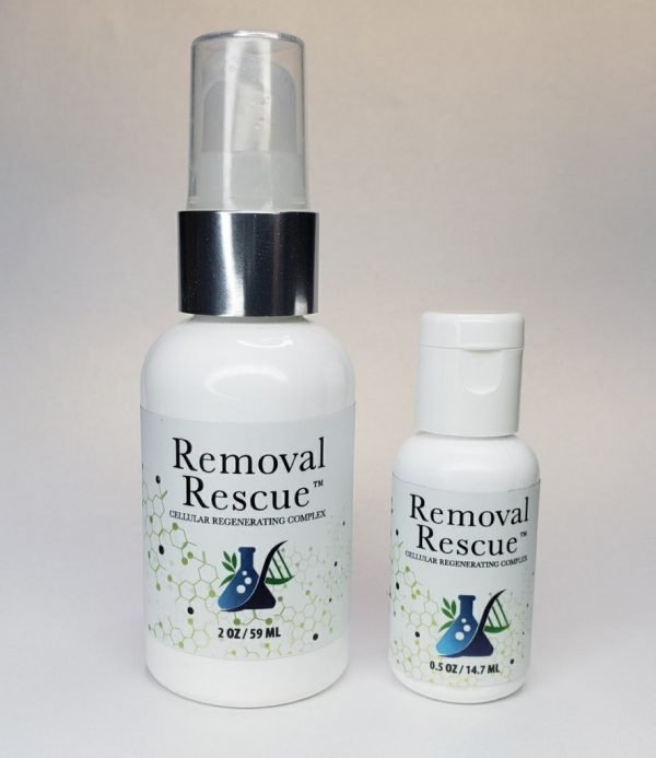 removal-rescur.jpg